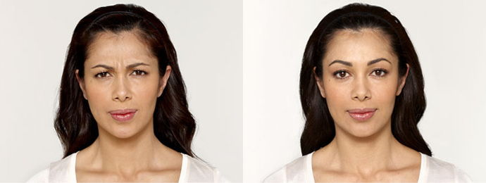 Botox Cosmetic - Before and after